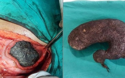 Removed melon hair hair from the stomach of the girl addicted to eating hair