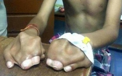 Genetic disorder leaves a Telangana child with fingers and toes together